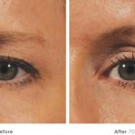 ultherapy brow