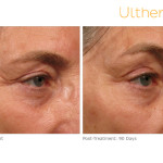 ultherapy-005a-018y_before-90daysafter_brow (1)